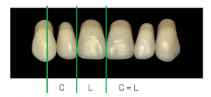 A központi szélességet az oldalsó irány határozza meg, amelyet hozzáadnak a szemfog középső részéhez.