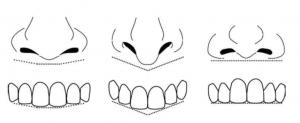 Az első fogak alakját és elhelyezkedését az orr alapvonala határozza meg.